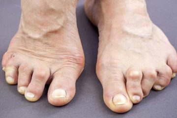 Feet Of Woman Deformed From Rheumatoid Arthritis. Holding pill