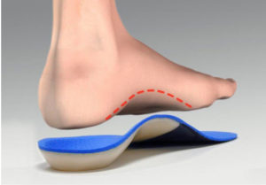 arch support - reduce foot fatigue and pain - insoles - orthotics - aa podiatry